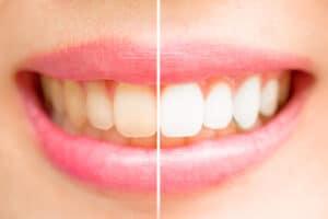 Teeth Whitening Newport, South Wales | Isca Dental